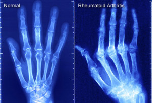 Study: Cannabis May Treat Rheumatoid Arthritis