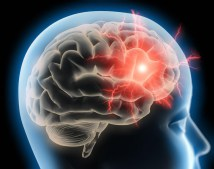 Study: Cannabinoids May Help Treat Traumatic Brain Injury