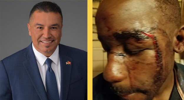 City Councilmember Accused of Punching, Biting and Strangling Medical Marijuana Dispensary Applicant