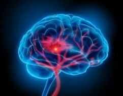 Cannabis May Help Attenuate Brain Injury Following Intracerebral Hemorrhage, According to New Study
