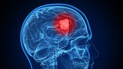 Study: THC and CBD Combined With Temozolomide May Help Treat Glioblastoma