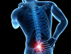 Study: THC/CBD Effective in Treating Pain From Failed Back Surgery Syndrome