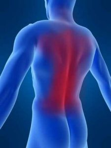 Study: CBD Cream Effective in Treating Symptoms of Back Pain